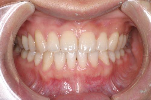 反対咬合の治療例(口元) 横浜市青葉区青葉台の矯正歯科:あおばだい矯正歯科